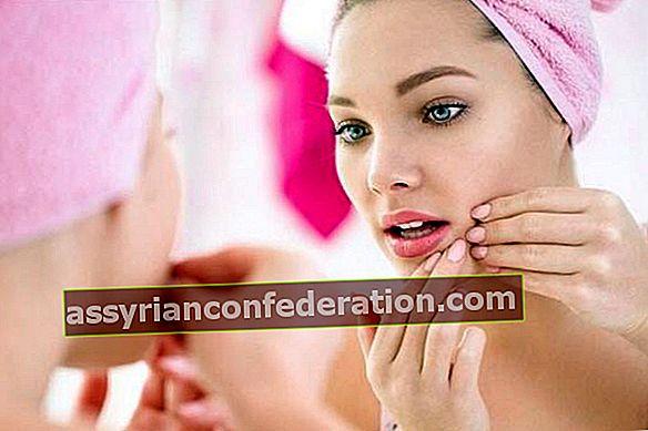 Metodi di trattamento naturale per le tue cicatrici da acne