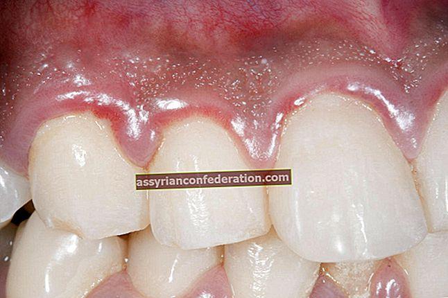 Apa artinya melihat gigi dalam mimpi? Ekspresi melihat gigi yang membusuk dalam mimpi