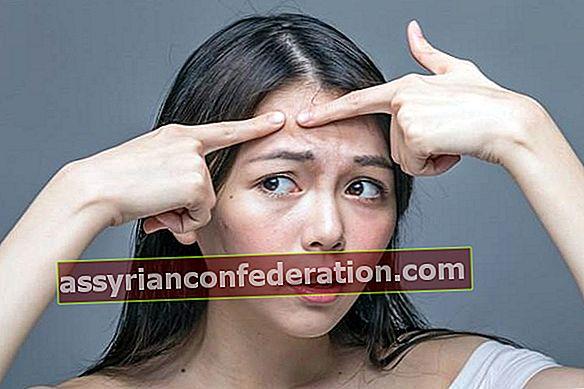 Qual è il trattamento per l'acne più efficace?